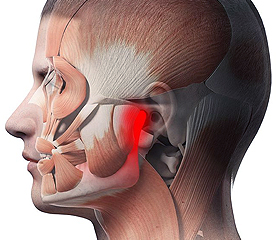 Volo Move and Align - Jaw Pain and TMJ Disorders