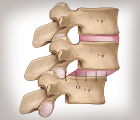 Volo Move and Align - Spondylolisthesis